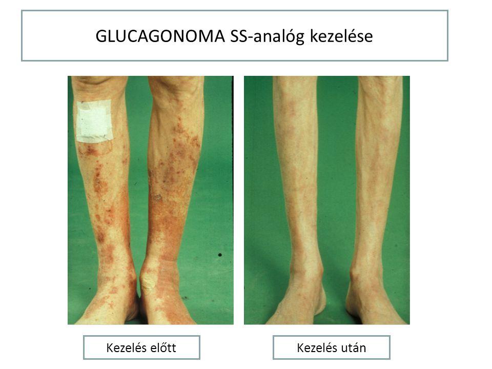 GLUCAGONOMA SS-analóg kezelése Kezelés előttKezelés után