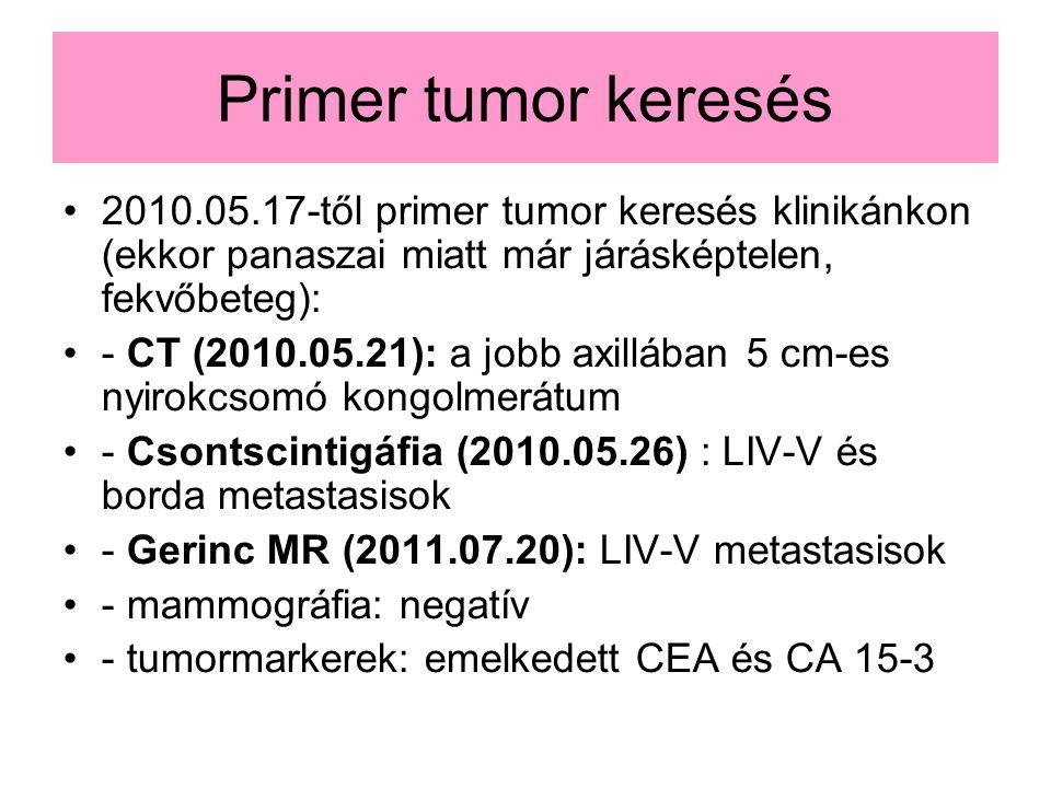 Primer tumor keresés 2010.05.17-től primer tumor keresés klinikánkon (ekkor panaszai miatt már járásképtelen, fekvőbeteg): - CT (2010.05.21): a jobb axillában 5 cm-es nyirokcsomó kongolmerátum - Csontscintigáfia (2010.05.26) : LIV-V és borda metastasisok - Gerinc MR (2011.07.20): LIV-V metastasisok - mammográfia: negatív - tumormarkerek: emelkedett CEA és CA 15-3