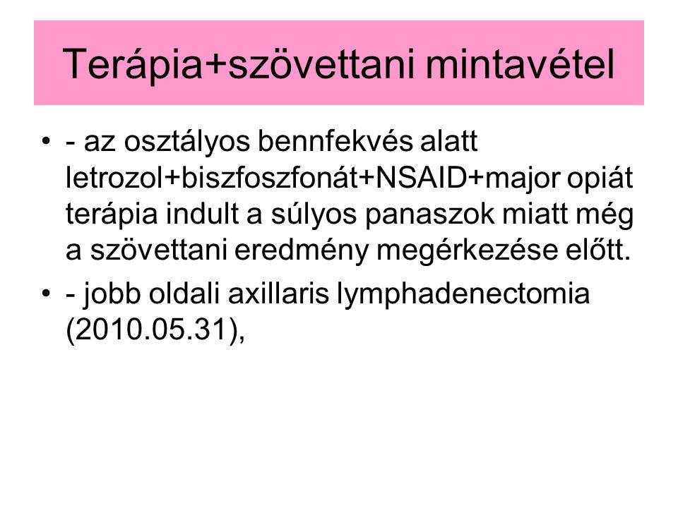 Terápia+szövettani mintavétel - az osztályos bennfekvés alatt letrozol+biszfoszfonát+NSAID+major opiát terápia indult a súlyos panaszok miatt még a szövettani eredmény megérkezése előtt.