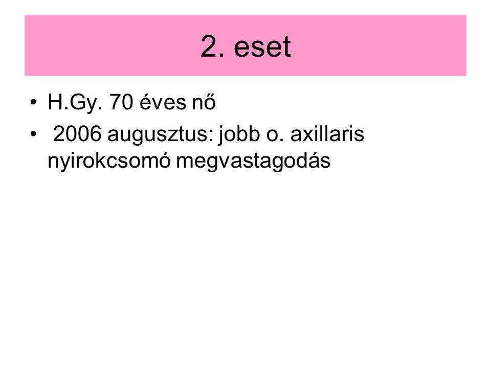 2. eset H.Gy. 70 éves nő 2006 augusztus: jobb o. axillaris nyirokcsomó megvastagodás