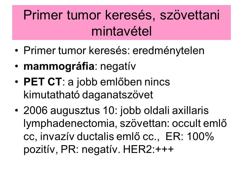 Primer tumor keresés, szövettani mintavétel Primer tumor keresés: eredménytelen mammográfia: negatív PET CT: a jobb emlőben nincs kimutatható daganatszövet 2006 augusztus 10: jobb oldali axillaris lymphadenectomia, szövettan: occult emlő cc, invazív ductalis emlő cc., ER: 100% pozitív, PR: negatív.