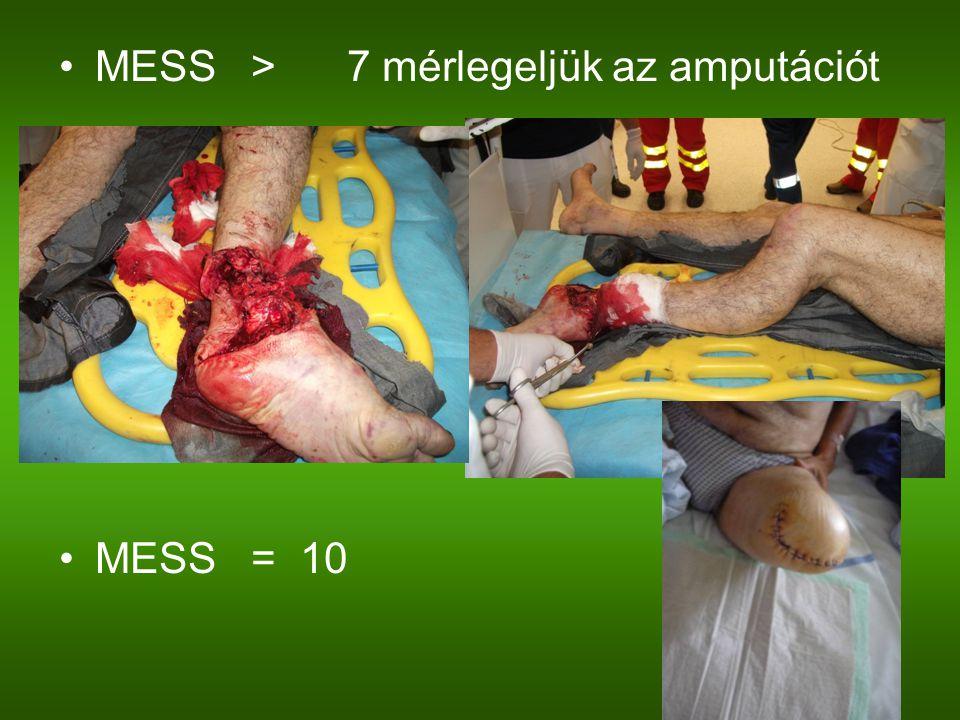 MESS>7 mérlegeljük az amputációt MESS= 10