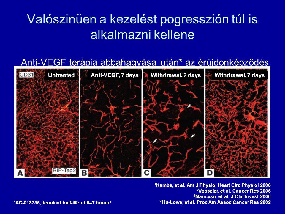 Valószinüen a kezelést pogresszión túl is alkalmazni kellene Anti-VEGF terápia abbahagyása után* az érújdonképződés beindulása 1–3 1 Kamba, et al. Am
