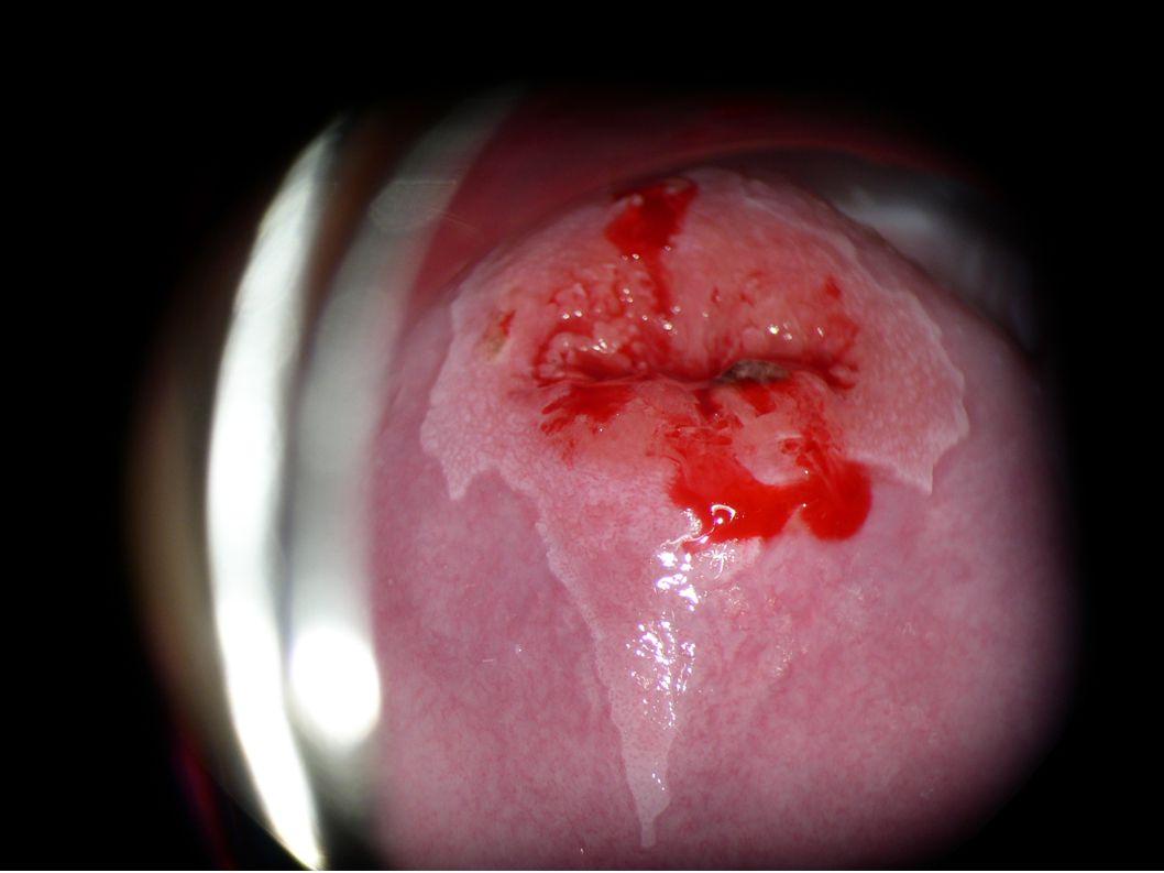 """Szűrés Alapja: prekancerosus elváltozás """"könnyű felismerhetősége Módszer: citológia, colposcopia A chr."""