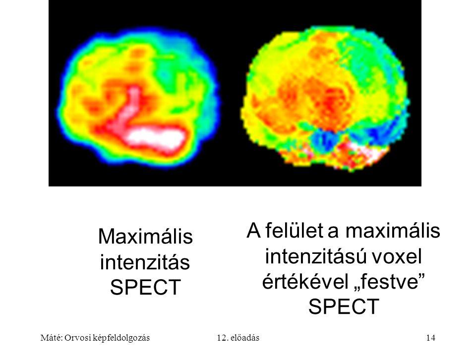 """Máté: Orvosi képfeldolgozás12. előadás14 Maximális intenzitás SPECT A felület a maximális intenzitású voxel értékével """"festve"""" SPECT"""