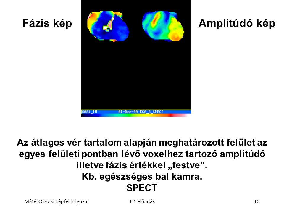 Máté: Orvosi képfeldolgozás12. előadás18 Az átlagos vér tartalom alapján meghatározott felület az egyes felületi pontban lévő voxelhez tartozó amplitú