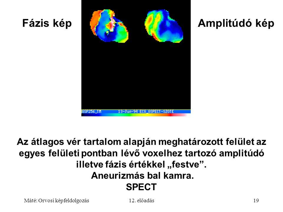 Máté: Orvosi képfeldolgozás12. előadás19 Az átlagos vér tartalom alapján meghatározott felület az egyes felületi pontban lévő voxelhez tartozó amplitú