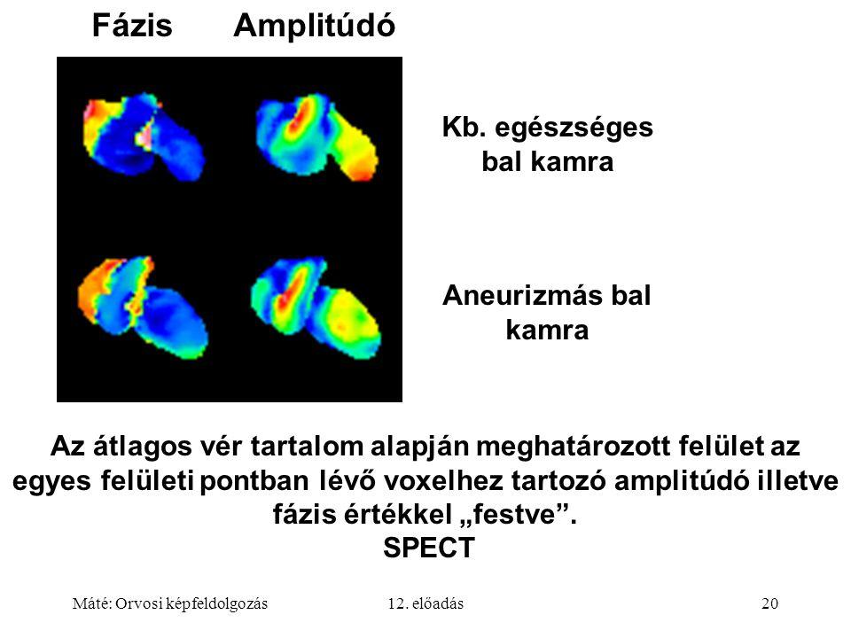 Máté: Orvosi képfeldolgozás12. előadás20 Az átlagos vér tartalom alapján meghatározott felület az egyes felületi pontban lévő voxelhez tartozó amplitú