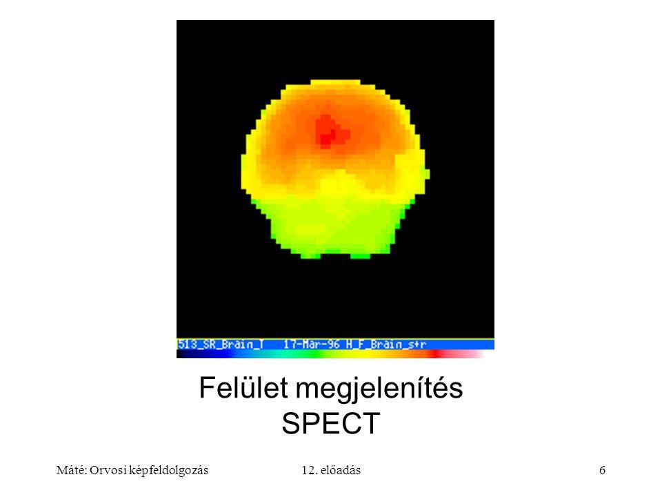 Máté: Orvosi képfeldolgozás12. előadás6 Felület megjelenítés SPECT