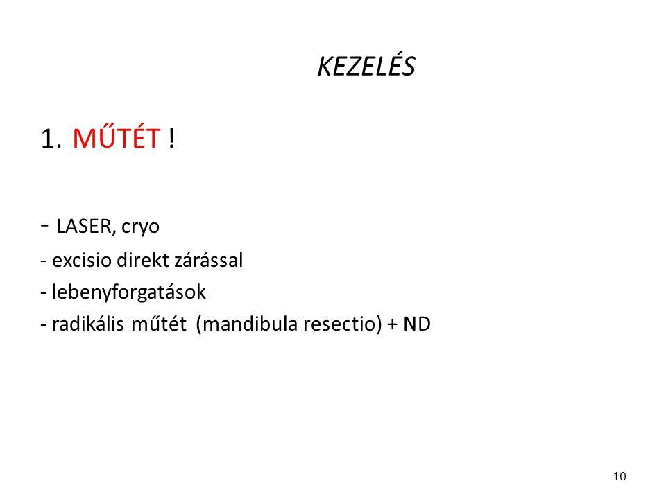 KEZELÉS 1. MŰTÉT ! - LASER, cryo - excisio direkt zárással - lebenyforgatások - radikális műtét (mandibula resectio) + ND 10