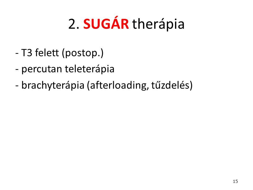 2. SUGÁR therápia - T3 felett (postop.) - percutan teleterápia - brachyterápia (afterloading, tűzdelés) 15