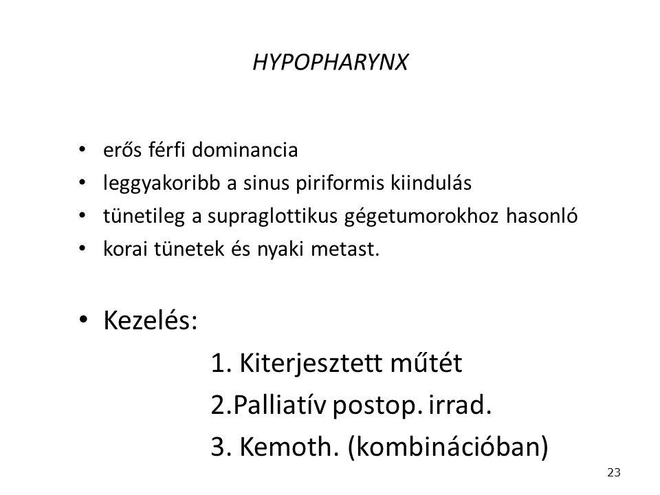 HYPOPHARYNX erős férfi dominancia leggyakoribb a sinus piriformis kiindulás tünetileg a supraglottikus gégetumorokhoz hasonló korai tünetek és nyaki m