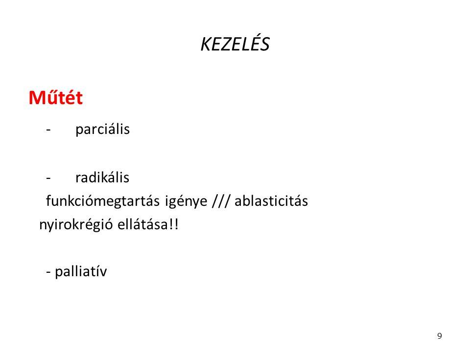 KEZELÉS Műtét -parciális -radikális funkciómegtartás igénye /// ablasticitás nyirokrégió ellátása!! - palliatív 9