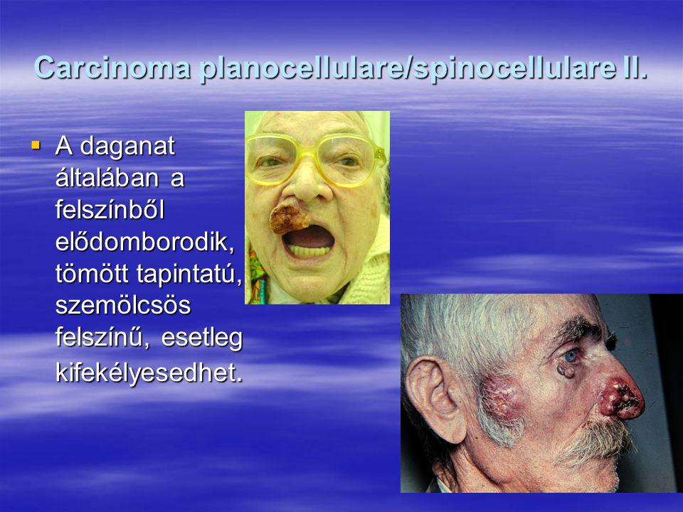 Carcinoma planocellulare/spinocellulare II.  A daganat általában a felszínből elődomborodik, tömött tapintatú, szemölcsös felszínű, esetleg kifekélye