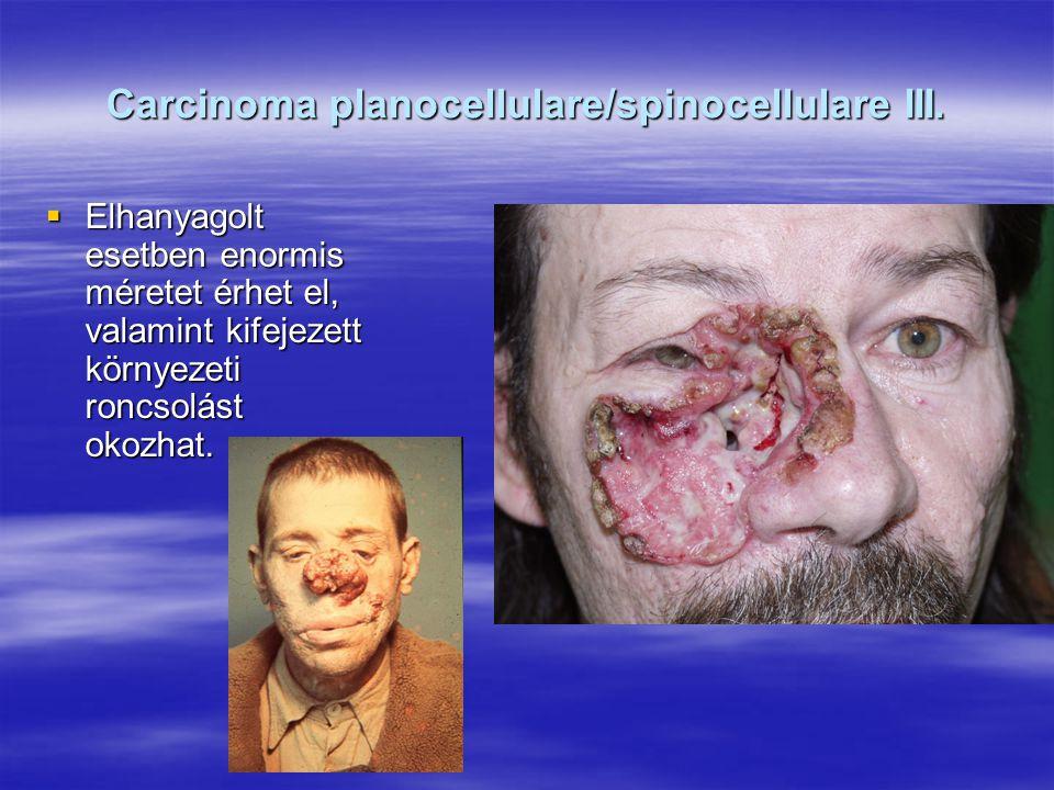Carcinoma planocellulare/spinocellulare III.  Elhanyagolt esetben enormis méretet érhet el, valamint kifejezett környezeti roncsolást okozhat.
