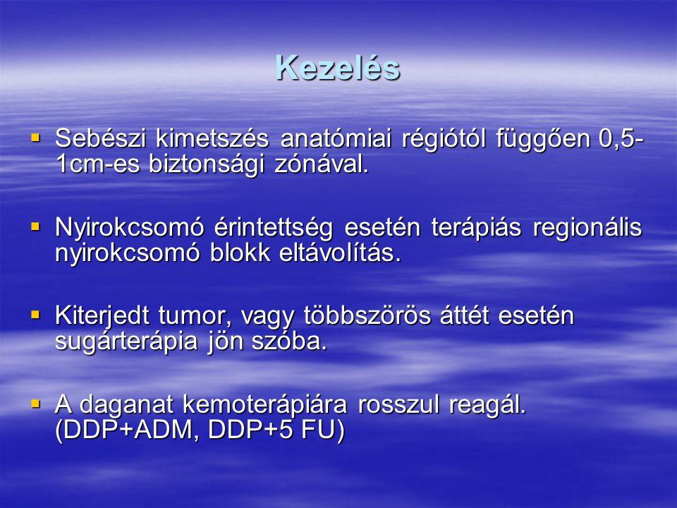 Kezelés  Sebészi kimetszés anatómiai régiótól függően 0,5- 1cm-es biztonsági zónával.  Nyirokcsomó érintettség esetén terápiás regionális nyirokcsom