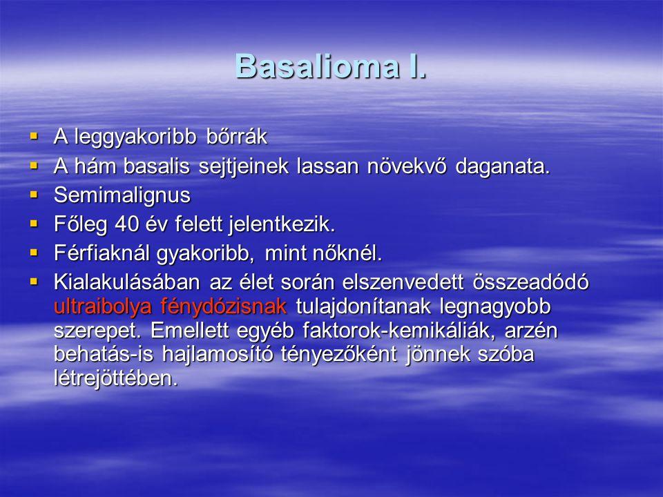 Basalioma I.  A leggyakoribb bőrrák  A hám basalis sejtjeinek lassan növekvő daganata.  Semimalignus  Főleg 40 év felett jelentkezik.  Férfiaknál