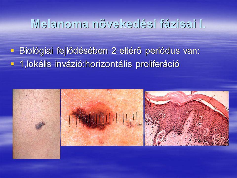 Melanoma növekedési fázisai I.  Biológiai fejlődésében 2 eltérő periódus van:  1,lokális invázió:horizontális proliferáció