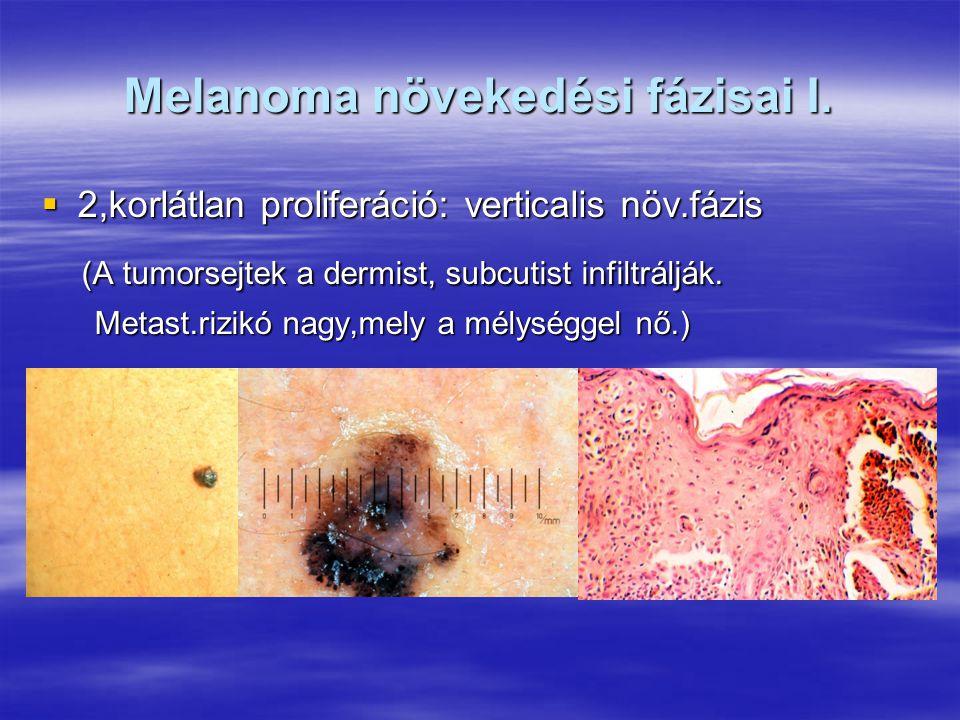 Melanoma növekedési fázisai I.  2,korlátlan proliferáció: verticalis növ.fázis (A tumorsejtek a dermist, subcutist infiltrálják. (A tumorsejtek a der