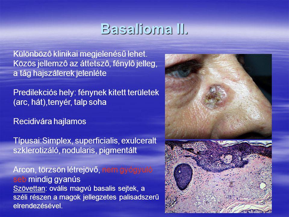 Basalioma II. Különbözô klinikai megjelenésű lehet. Közös jellemzô az áttetszô, fénylô jelleg, a tág hajszálerek jelenléte Predilekciós hely: fénynek