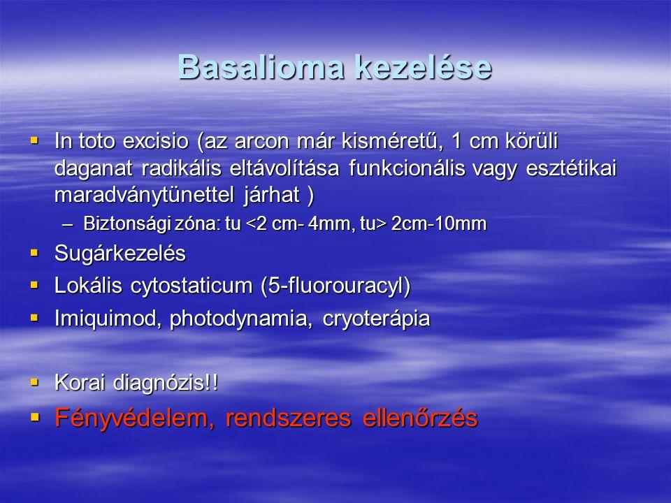 Basalioma kezelése  In toto excisio (az arcon már kisméretű, 1 cm körüli daganat radikális eltávolítása funkcionális vagy esztétikai maradványtünettel járhat ) –Biztonsági zóna: tu 2cm-10mm  Sugárkezelés  Lokális cytostaticum (5-fluorouracyl)  Imiquimod, photodynamia, cryoterápia  Korai diagnózis!.