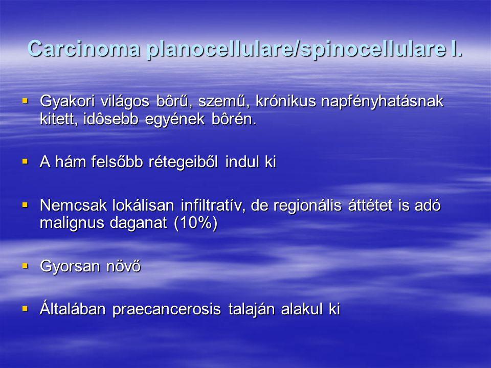 Carcinoma planocellulare/spinocellulare I.
