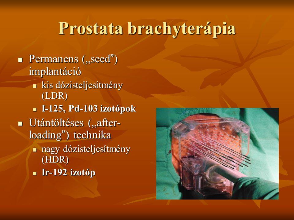 """Prostata brachyterápia Permanens (""""seed"""") implantáció Permanens (""""seed"""") implantáció kis dózisteljesítmény (LDR) kis dózisteljesítmény (LDR) I-125, Pd"""