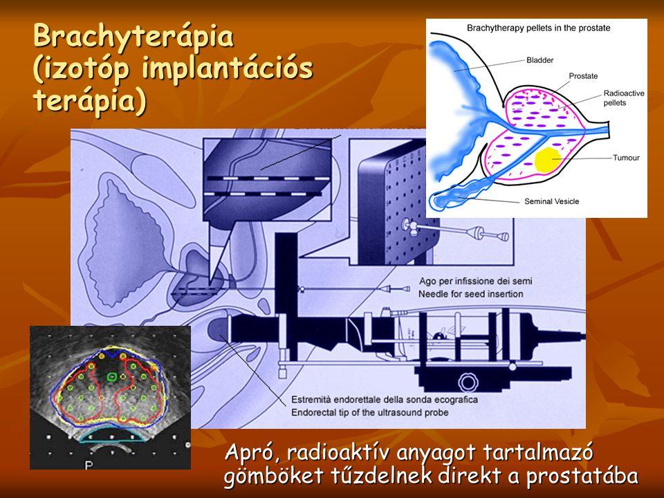 Brachyterápia (izotóp implantációs terápia) Apró, radioaktív anyagot tartalmazó gömböket tűzdelnek direkt a prostatába