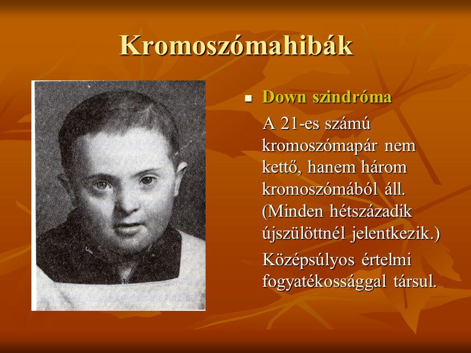 Kromoszómahibák Down szindróma Down szindróma A 21-es számú kromoszómapár nem kettő, hanem három kromoszómából áll. (Minden hétszázadik újszülöttnél j