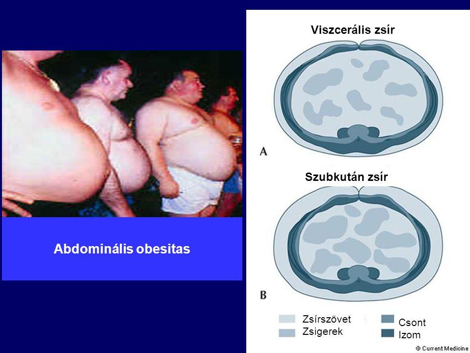 Abdominális obesitas Viszcerális zsír Szubkután zsír Zsírszövet Zsigerek Csont Izom