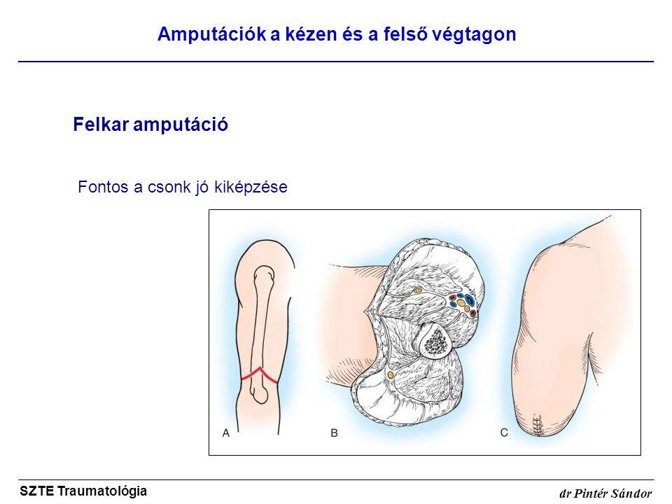 Amputációk a kézen és a felső végtagon SZTE Traumatológia dr Pintér Sándor Felkar amputáció Fontos a csonk jó kiképzése