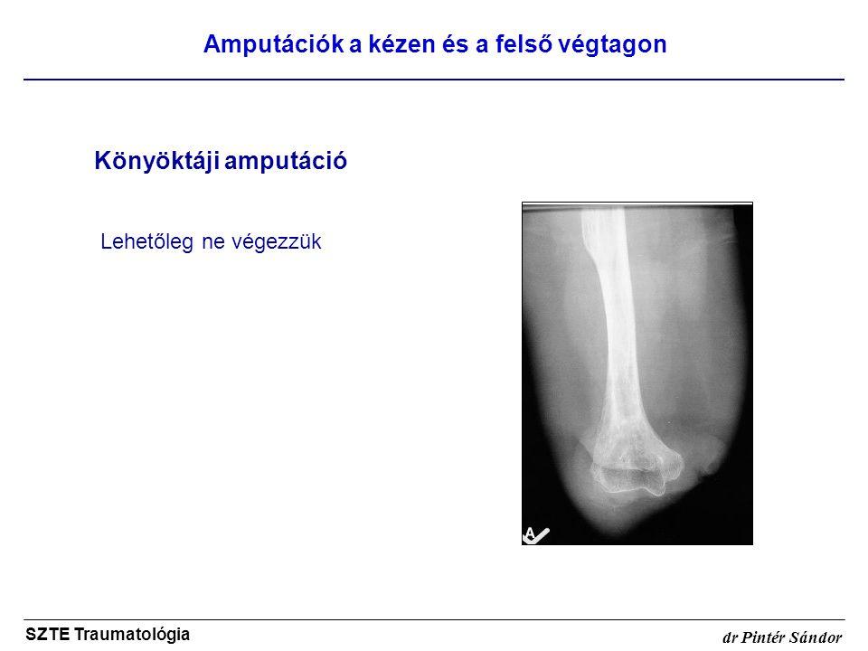 Amputációk a kézen és a felső végtagon SZTE Traumatológia dr Pintér Sándor Könyöktáji amputáció Lehetőleg ne végezzük