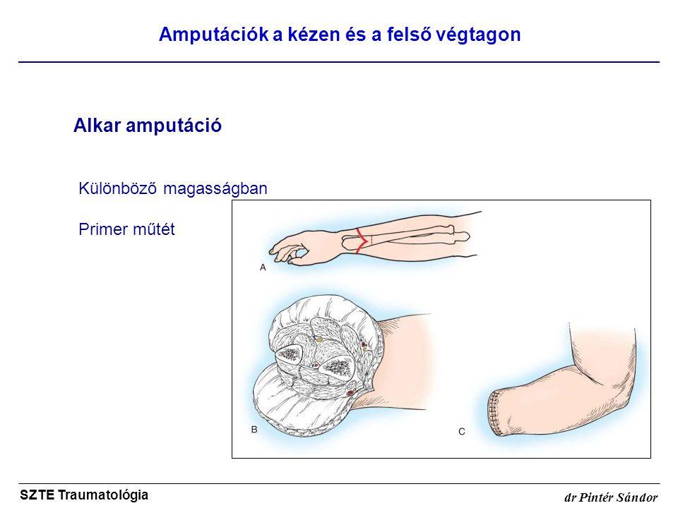 Amputációk a kézen és a felső végtagon SZTE Traumatológia dr Pintér Sándor Alkar amputáció Különböző magasságban Primer műtét
