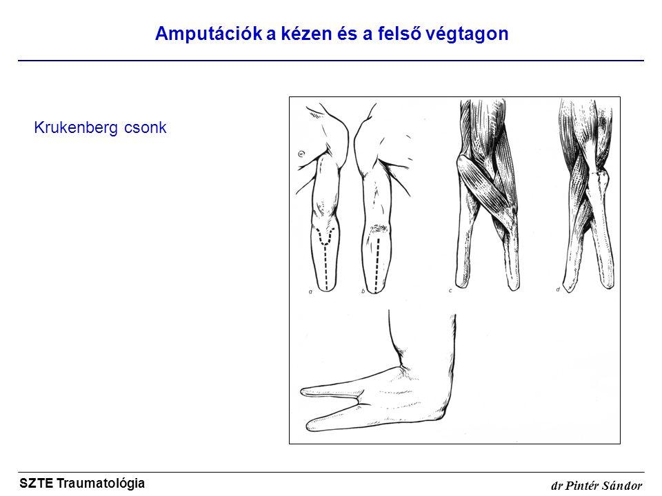 Amputációk a kézen és a felső végtagon SZTE Traumatológia dr Pintér Sándor Krukenberg csonk