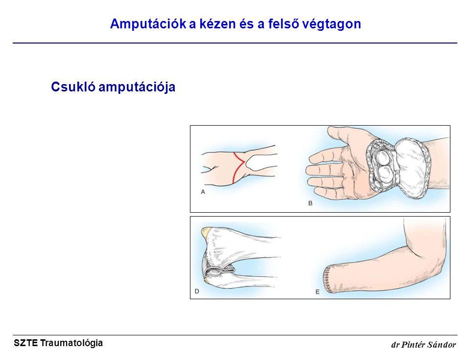 Amputációk a kézen és a felső végtagon SZTE Traumatológia dr Pintér Sándor Csukló amputációja