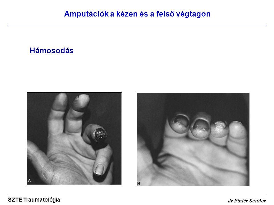 Amputációk a kézen és a felső végtagon SZTE Traumatológia dr Pintér Sándor Hámosodás