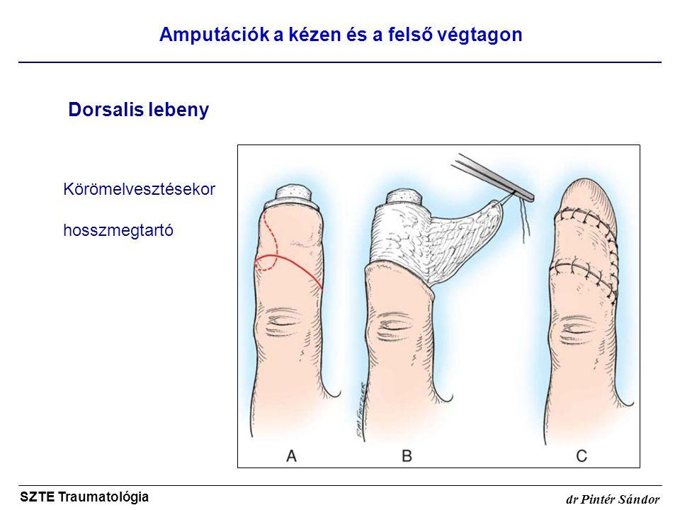 Amputációk a kézen és a felső végtagon SZTE Traumatológia dr Pintér Sándor Dorsalis lebeny Körömelvesztésekor hosszmegtartó