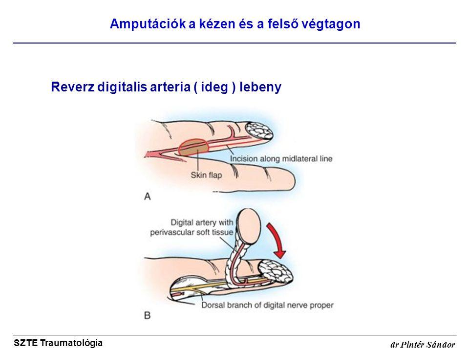 Amputációk a kézen és a felső végtagon SZTE Traumatológia dr Pintér Sándor Reverz digitalis arteria ( ideg ) lebeny
