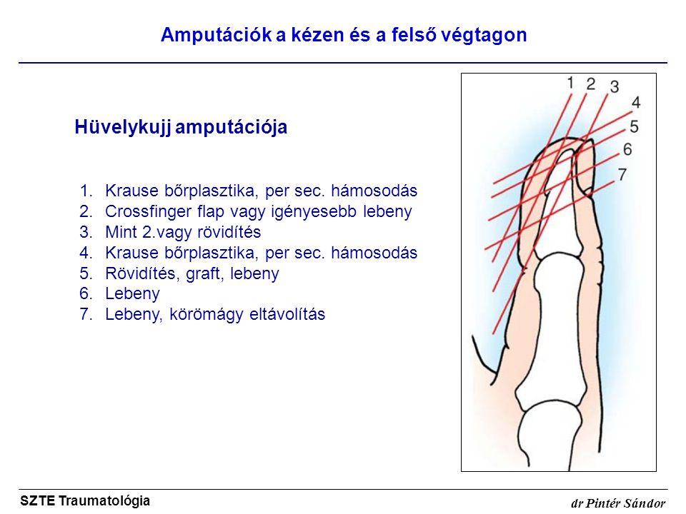 Amputációk a kézen és a felső végtagon SZTE Traumatológia dr Pintér Sándor Hüvelykujj amputációja 1.Krause bőrplasztika, per sec. hámosodás 2.Crossfin