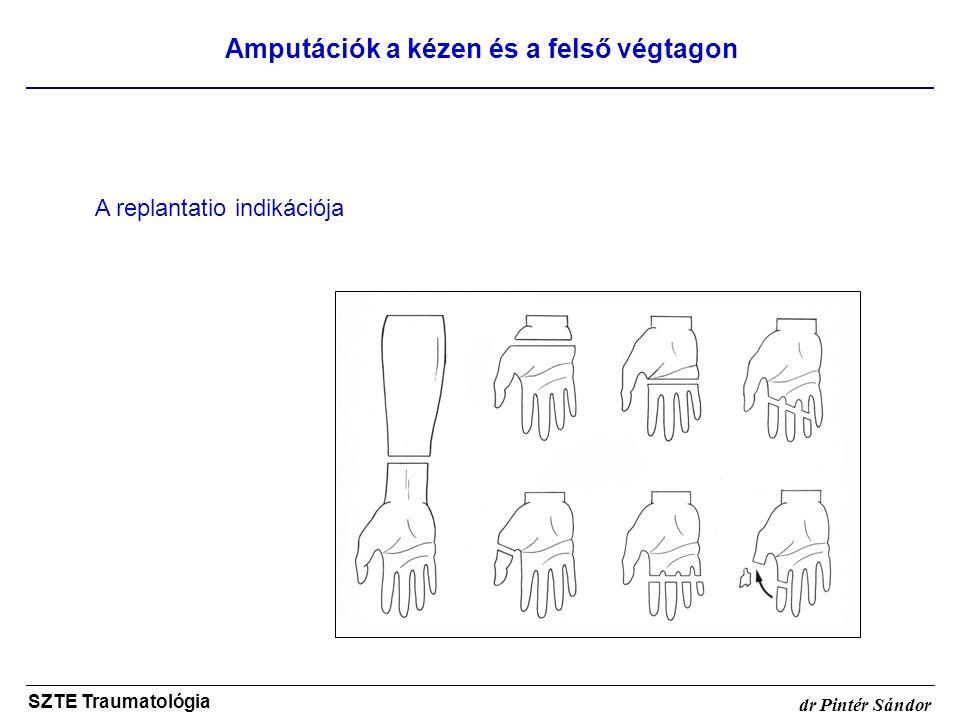Amputációk a kézen és a felső végtagon SZTE Traumatológia dr Pintér Sándor A replantatio indikációja