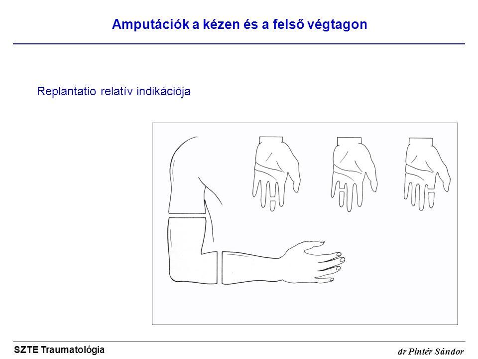 Amputációk a kézen és a felső végtagon SZTE Traumatológia dr Pintér Sándor Replantatio relatív indikációja