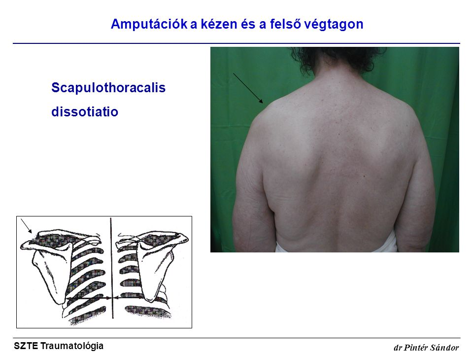 Amputációk a kézen és a felső végtagon SZTE Traumatológia dr Pintér Sándor Scapulothoracalis dissotiatio