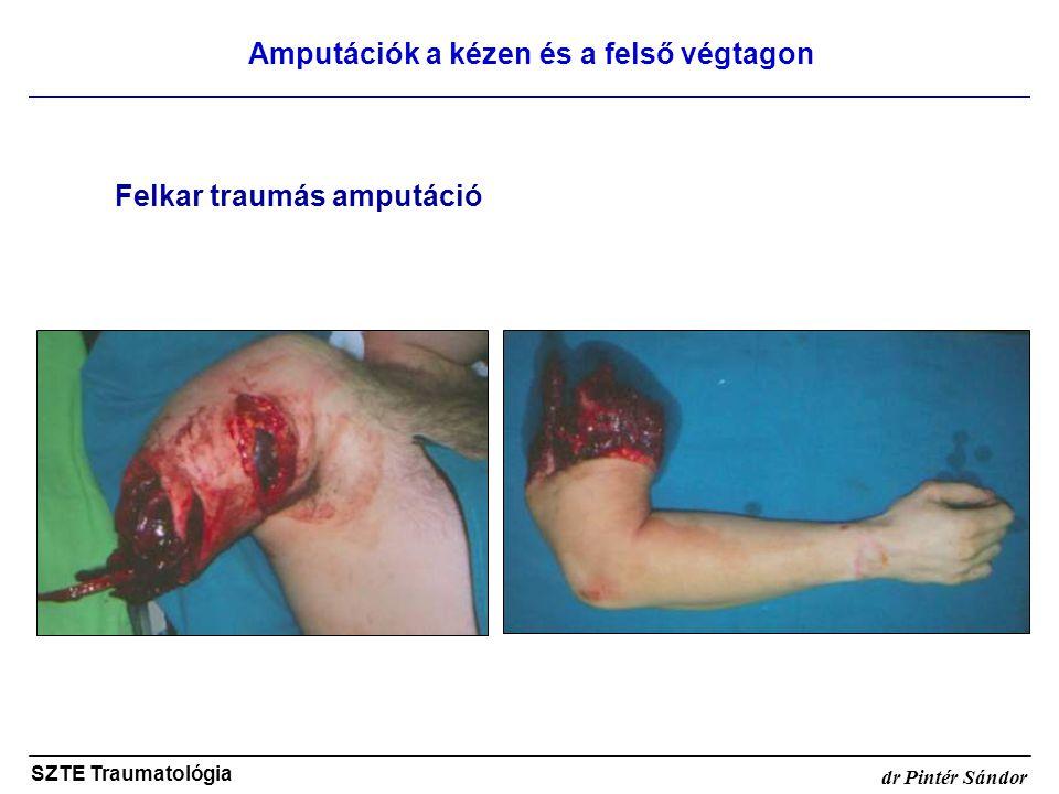 Amputációk a kézen és a felső végtagon SZTE Traumatológia dr Pintér Sándor Felkar traumás amputáció