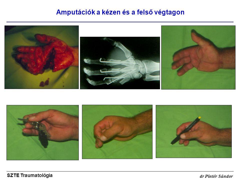 Amputációk a kézen és a felső végtagon SZTE Traumatológia dr Pintér Sándor