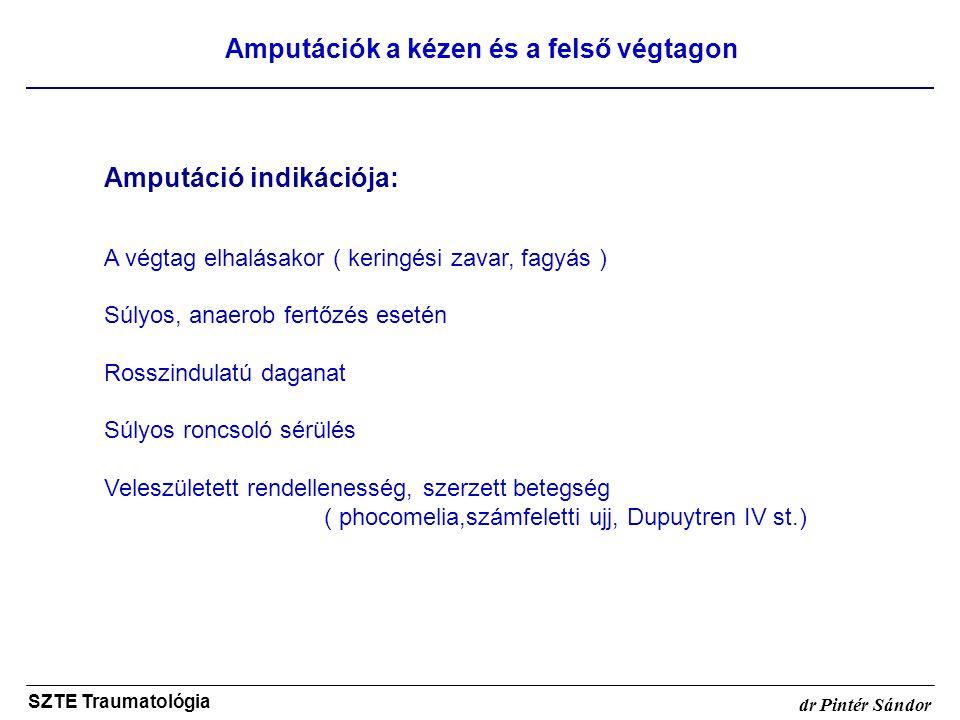 Amputációk a kézen és a felső végtagon SZTE Traumatológia dr Pintér Sándor Amputáció indikációja: A végtag elhalásakor ( keringési zavar, fagyás ) Súl
