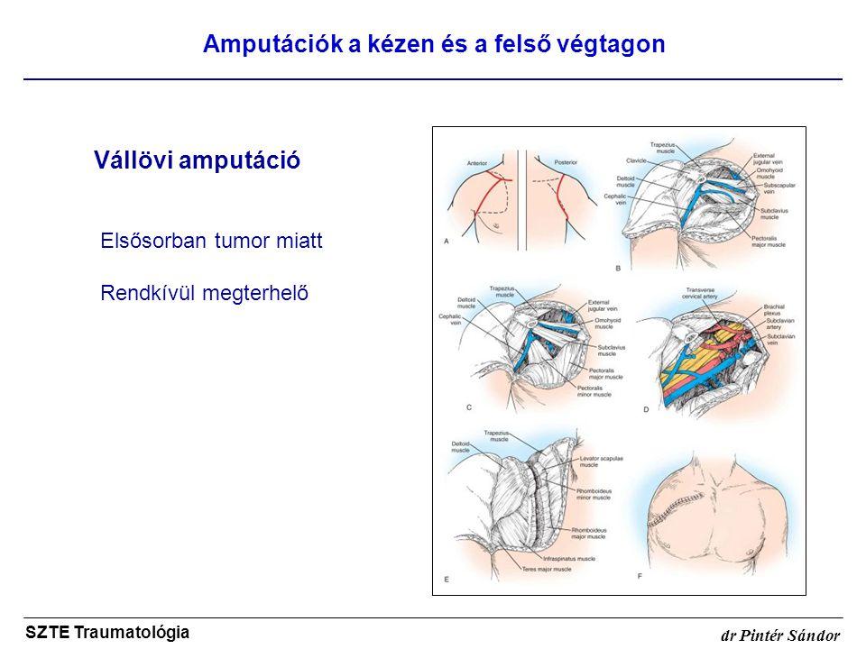 Amputációk a kézen és a felső végtagon SZTE Traumatológia dr Pintér Sándor Vállövi amputáció Elsősorban tumor miatt Rendkívül megterhelő