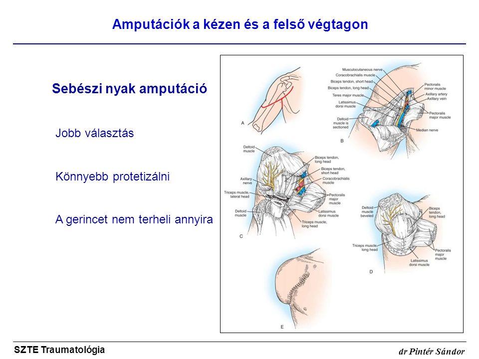 Amputációk a kézen és a felső végtagon SZTE Traumatológia dr Pintér Sándor Sebészi nyak amputáció Jobb választás Könnyebb protetizálni A gerincet nem