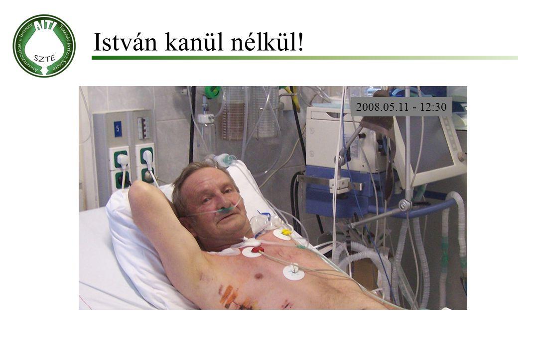 István kanül nélkül! Molnár '99 2008.05.11 - 12:30