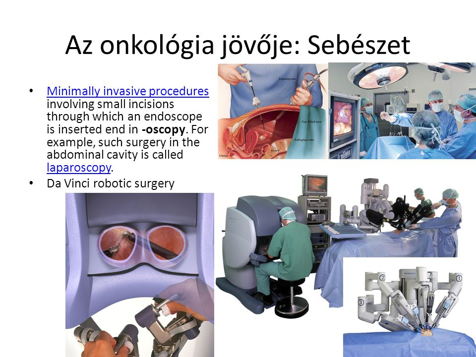 Az onkológia jövője: Sebészet Minimally invasive procedures involving small incisions through which an endoscope is inserted end in -oscopy. For examp