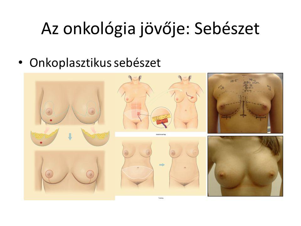Citoreduktív sebészet (CRS) és intreaperitonealis hipertermiás kemoterápia (HYPEC) http://www.youtube.com/watch?v=Izw3Nj9Y_Dk&feature=player_embedded